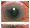 Glaucoma treatment at Gerstein Eye Institute